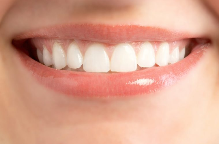 Do you want a brighter smile? Oil pulling is the answer!